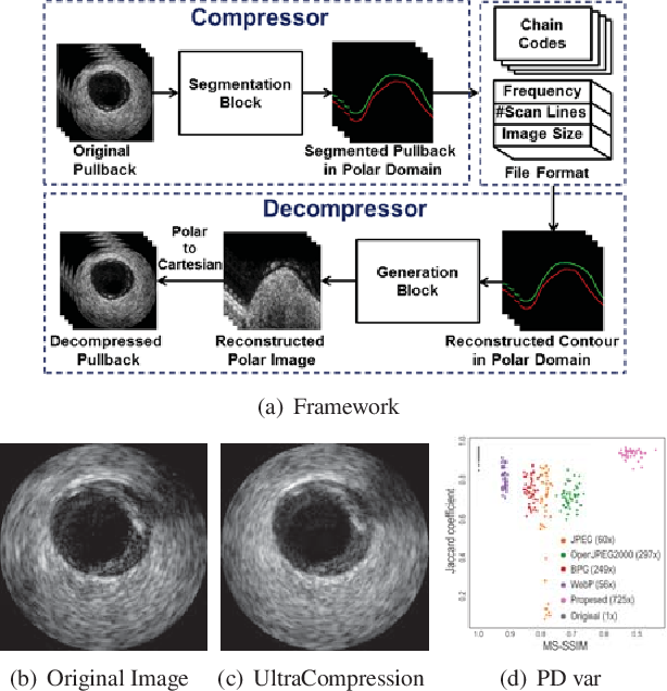 Figure 1 for UltraCompression: Framework for High Density Compression of Ultrasound Volumes using Physics Modeling Deep Neural Networks