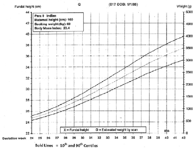 Figure 2 from Customised symphysio fundal height charts ...