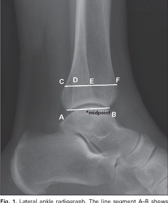 Figure 1 From Radiographic Evaluation Of The Ankle Syndesmosis