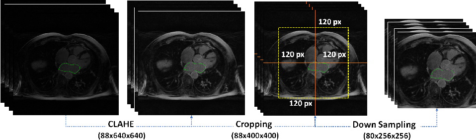 Figure 3 for Dilated Convolutions in Neural Networks for Left Atrial Segmentation in 3D Gadolinium Enhanced-MRI