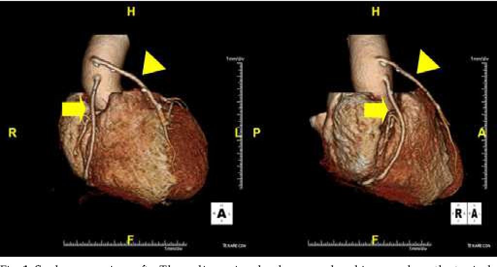 Figure 1 from Assessment of Coronary Artery Bypass Graft ( CABG ...