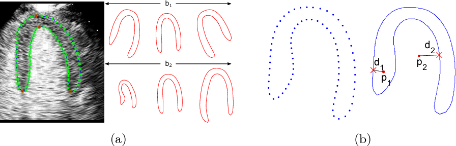 Figure 1 for Myocardial Segmentation of Contrast Echocardiograms Using Random Forests Guided by Shape Model