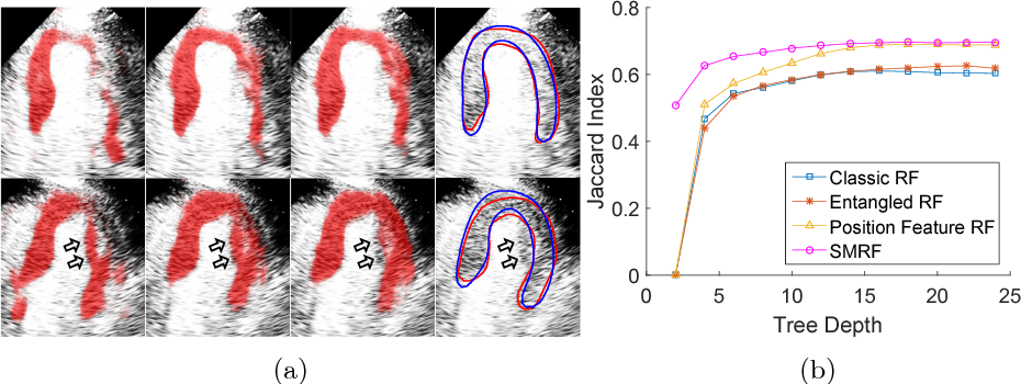 Figure 3 for Myocardial Segmentation of Contrast Echocardiograms Using Random Forests Guided by Shape Model