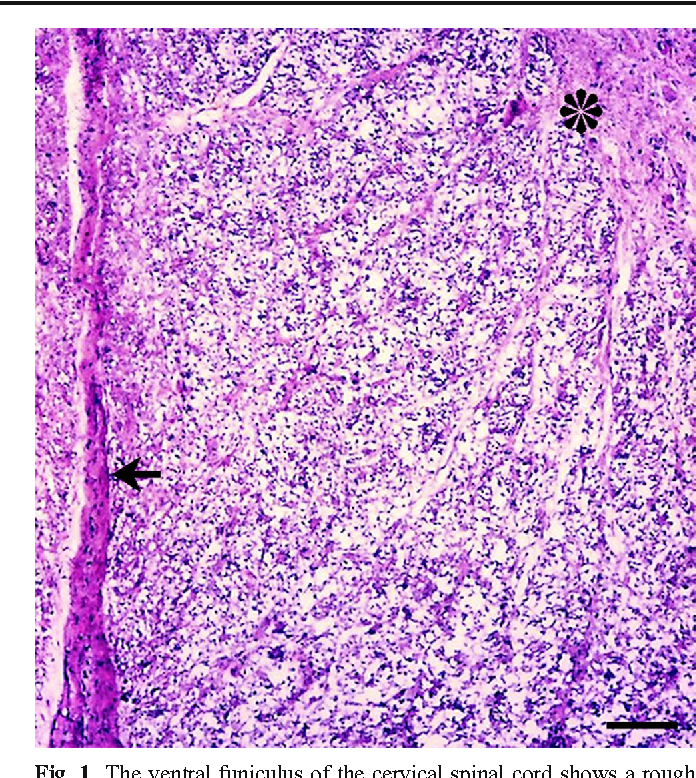 Figure 1 from A spontaneous case of spinal cord degeneration