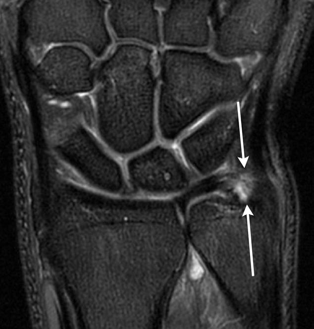 Figure 22 from MRI of wrist ligaments. - Semantic Scholar