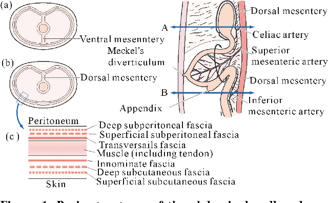 Figure 1 from Femoral Hernia : A Review of the Clinical Anatomy and ...