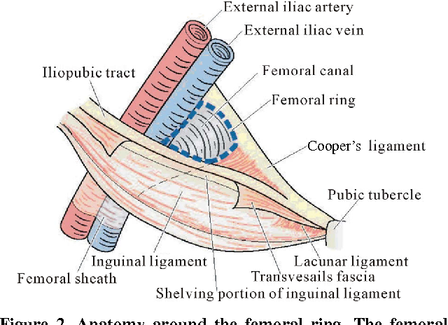 Figure 2 from Femoral Hernia : A Review of the Clinical Anatomy and ...