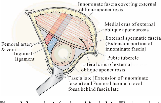 Figure 3 from Femoral Hernia : A Review of the Clinical Anatomy and ...