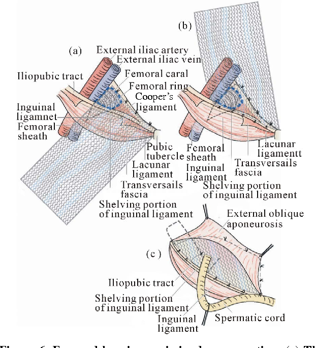 Figure 6 From Femoral Hernia A Review Of The Clinical Anatomy And
