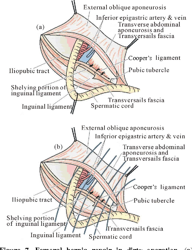 Figure 7 from Femoral Hernia : A Review of the Clinical Anatomy and ...