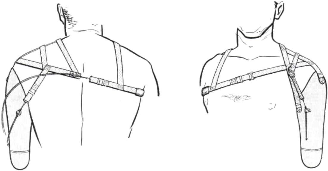 Figure 21 from Harness patterns for upper-extremity prostheses ...