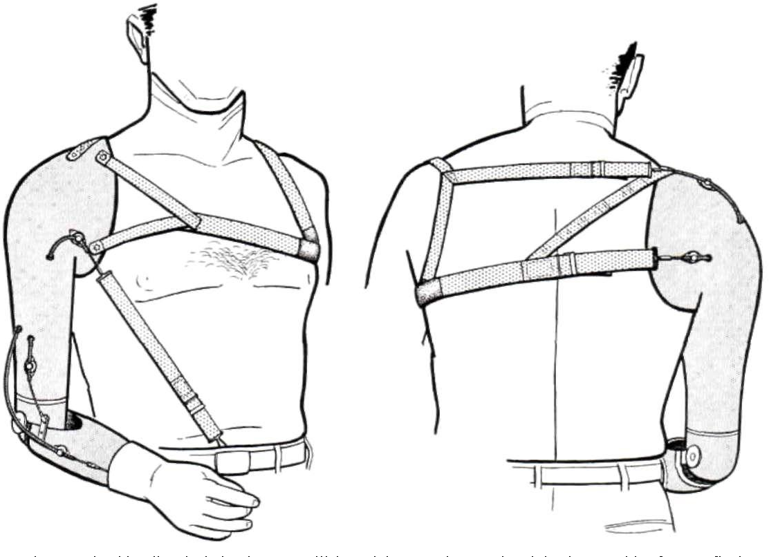 Figure 26 from Harness patterns for upper-extremity prostheses ...