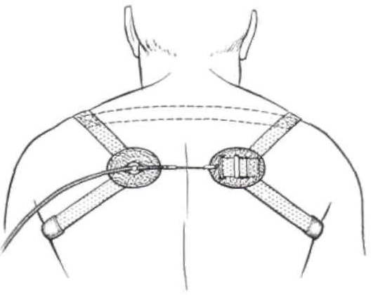 Figure 4 From Harness Patterns For Upper Extremity Prostheses