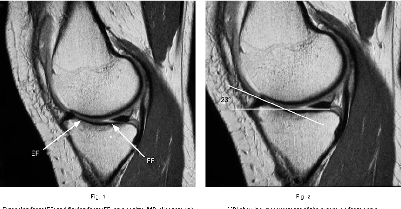 Variation in the anatomy of the tibial plateau: a possible factor in ...