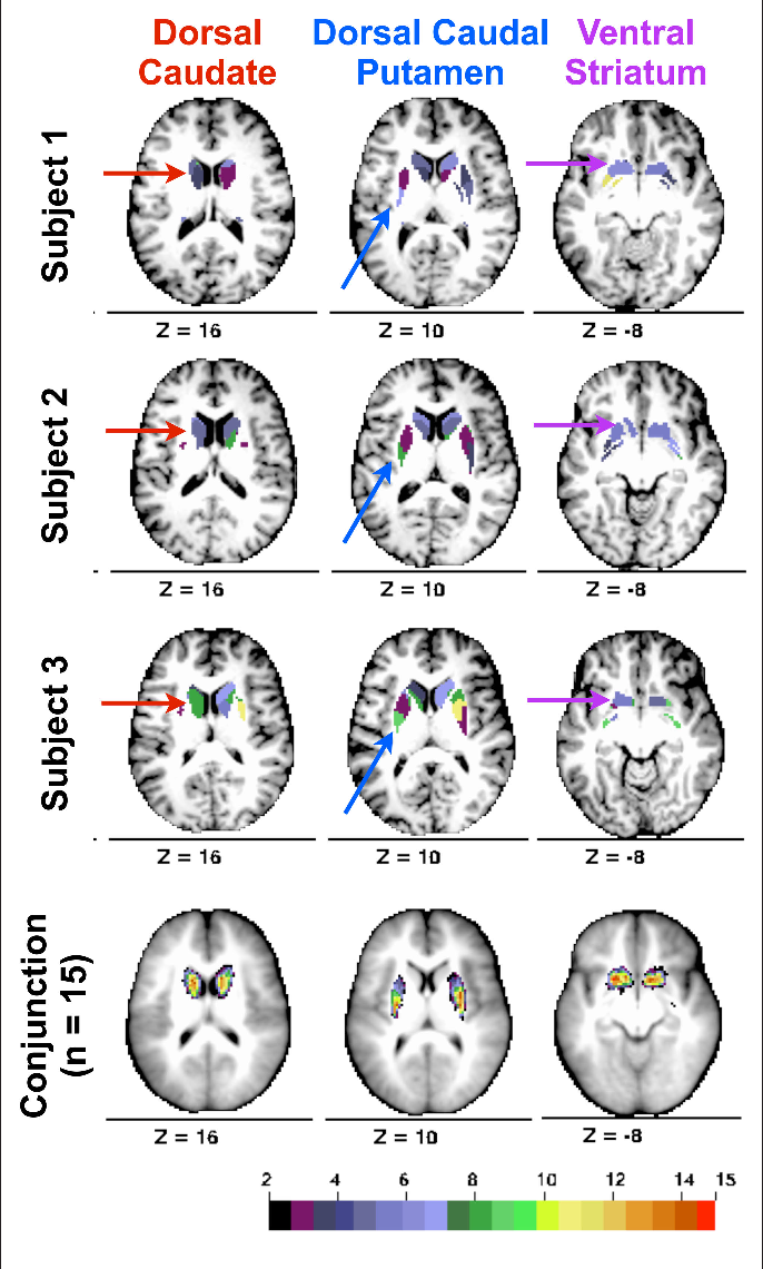 Identifying Basal Ganglia Divisions in Individuals Using Resting ...