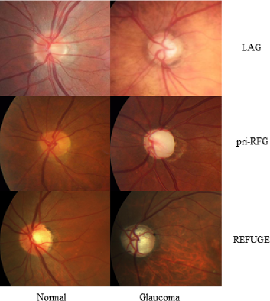 Figure 2 for Self-Adaptive Transfer Learning for Multicenter Glaucoma Classification in Fundus Retina Images