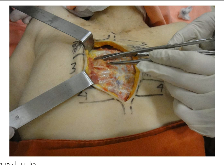 Surgical Anatomy Of The Internal Thoracic Lymph Nodes In Fresh Human