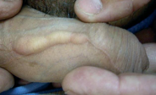 Brunette porn media