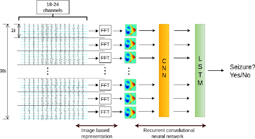 Figure 1 for Learning Robust Features using Deep Learning for Automatic Seizure Detection