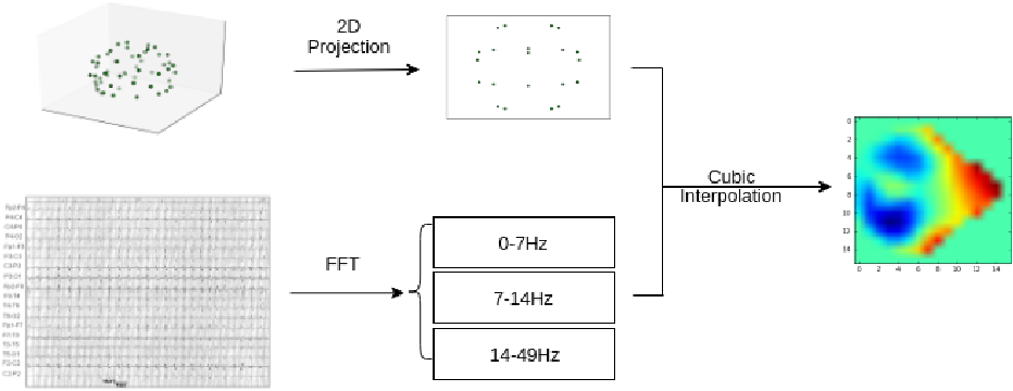 Figure 2 for Learning Robust Features using Deep Learning for Automatic Seizure Detection