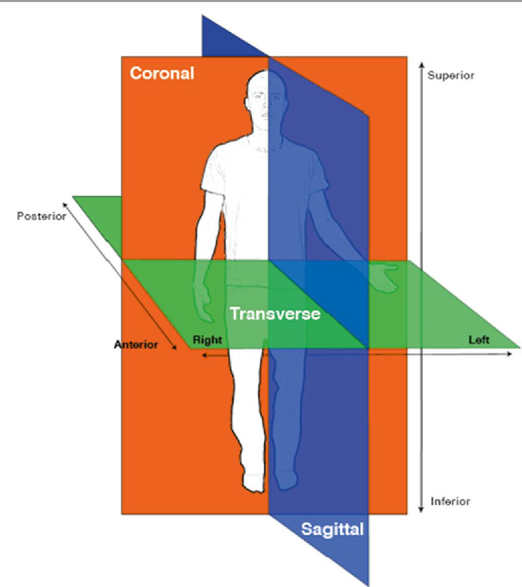 Attitudinally Correct Cardiac Anatomy - Semantic Scholar