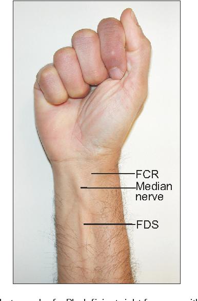 That Tendon Is The Median Nerve Perils Of A Palmaris Longus