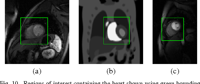 Figure 1 for Low-rank and Adaptive Sparse Signal (LASSI) Models for Highly Accelerated Dynamic Imaging