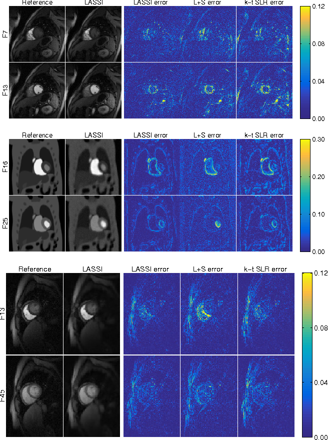 Figure 3 for Low-rank and Adaptive Sparse Signal (LASSI) Models for Highly Accelerated Dynamic Imaging