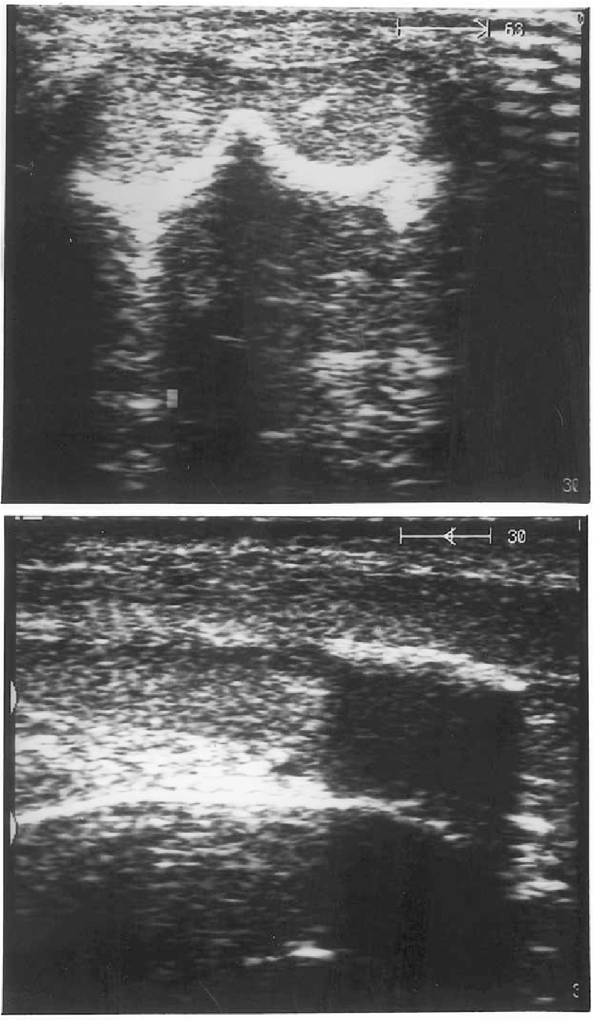 Figure 2. Ultrasound of the penis showing calcification in the tunica  albugenia. A:
