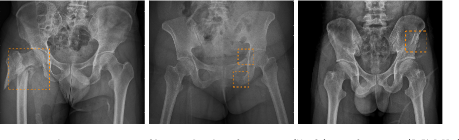 Figure 1 for Weakly Supervised Universal Fracture Detection in Pelvic X-rays