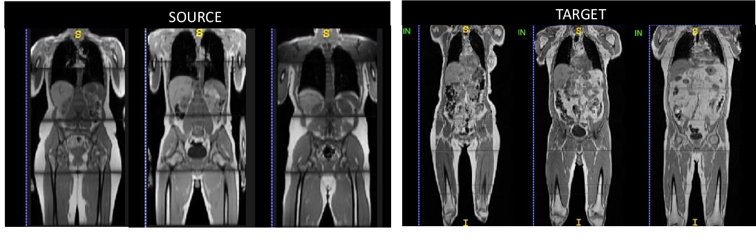 Figure 1 for Domain Adaptation for MRI Organ Segmentation using Reverse Classification Accuracy