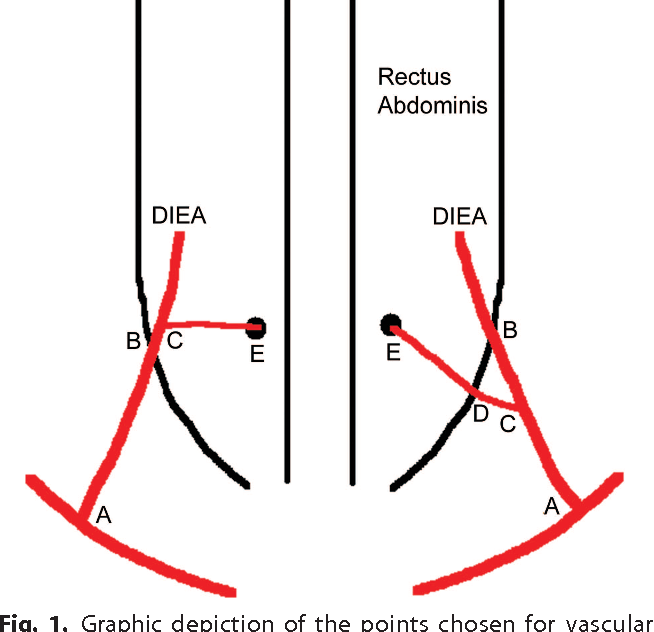The First Muscular Branch Of The Deep Inferior Epigastric Artery An