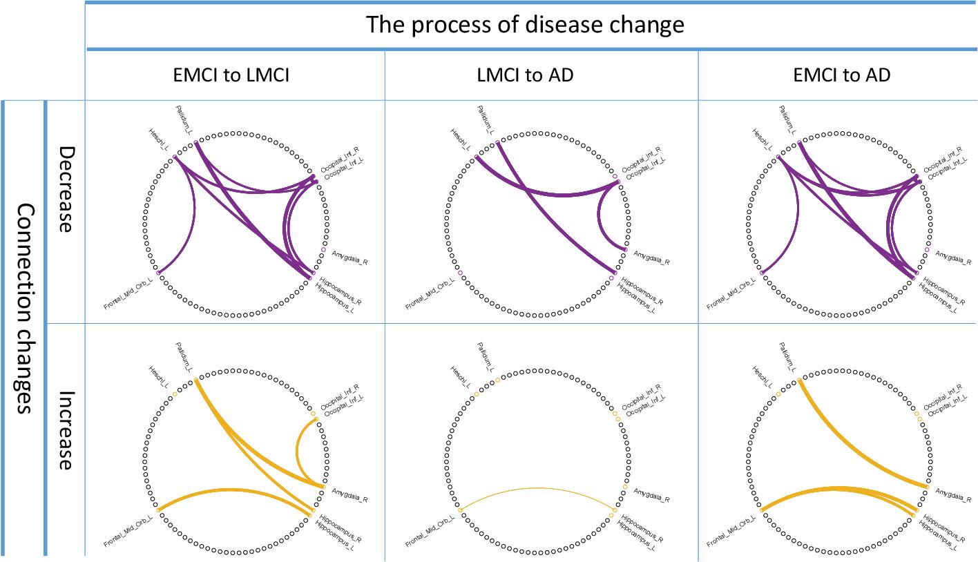 Figure 2 for DecGAN: Decoupling Generative Adversarial Network detecting abnormal neural circuits for Alzheimer's disease
