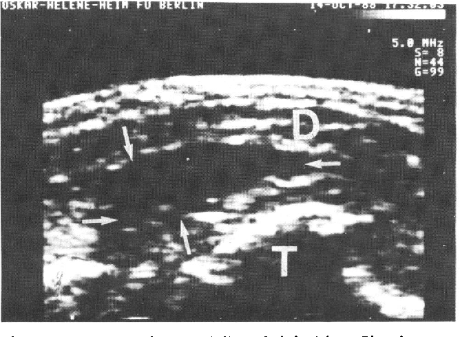 Figure 6 from Diagnostic ultrasound in the athlete\'s locomotor ...