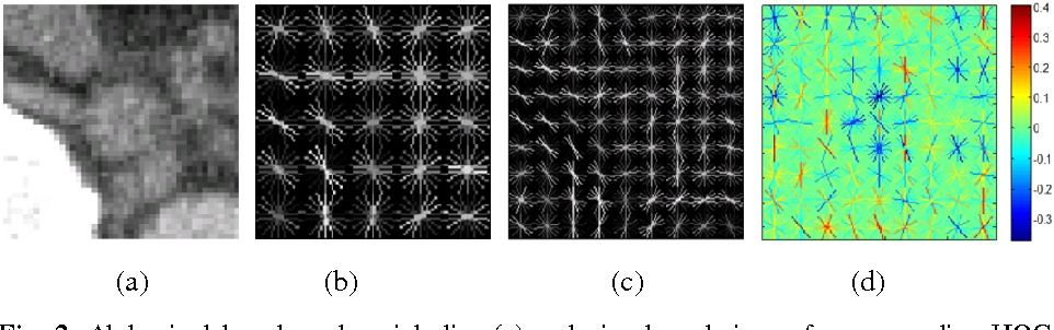 Figure 3 for 2D View Aggregation for Lymph Node Detection Using a Shallow Hierarchy of Linear Classifiers