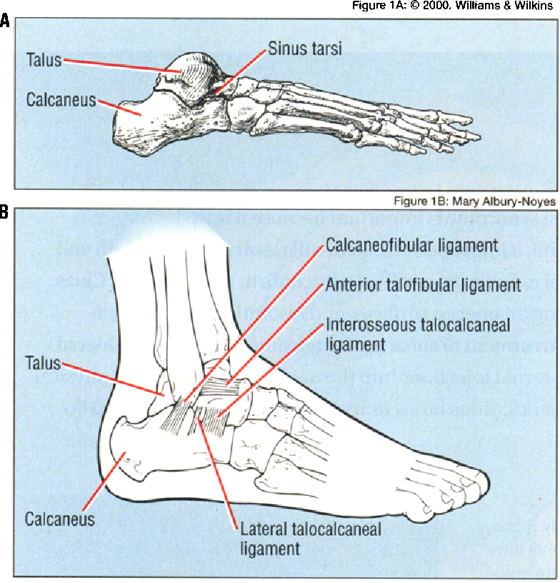 The sinus tarsi syndrome: a cause of chronic ankle pain. - Semantic ...
