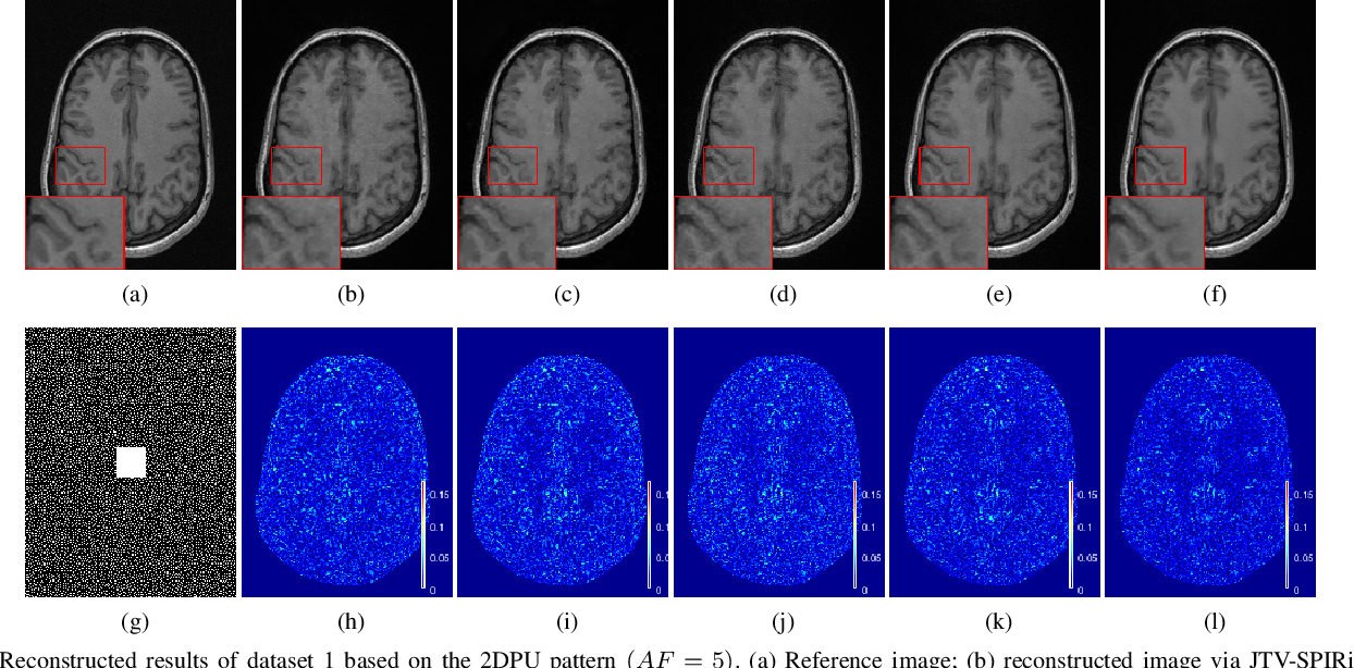 Figure 3 for Iterative Self-consistent Parallel Magnetic Resonance Imaging Reconstruction based on Nonlocal Low-Rank Regularization