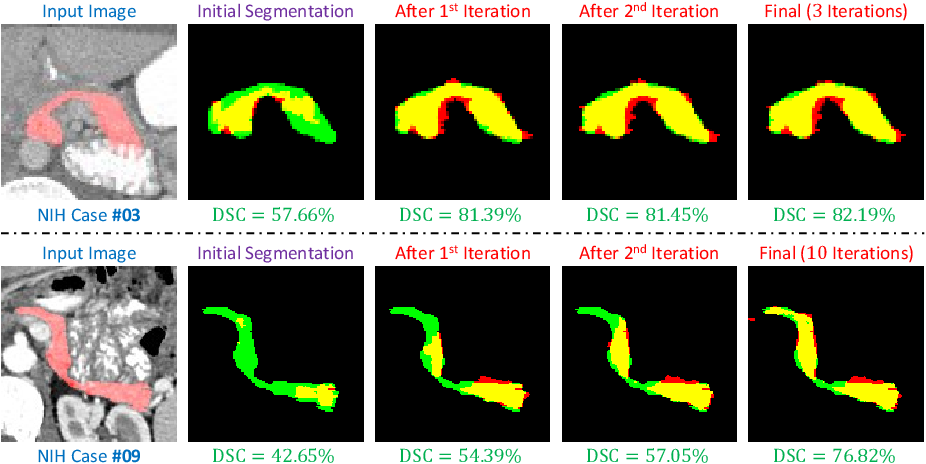 Figure 4 for A Fixed-Point Model for Pancreas Segmentation in Abdominal CT Scans