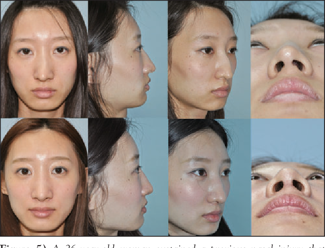 Figure 5 from Forty-five degree cutting septoplasty  - Semantic Scholar