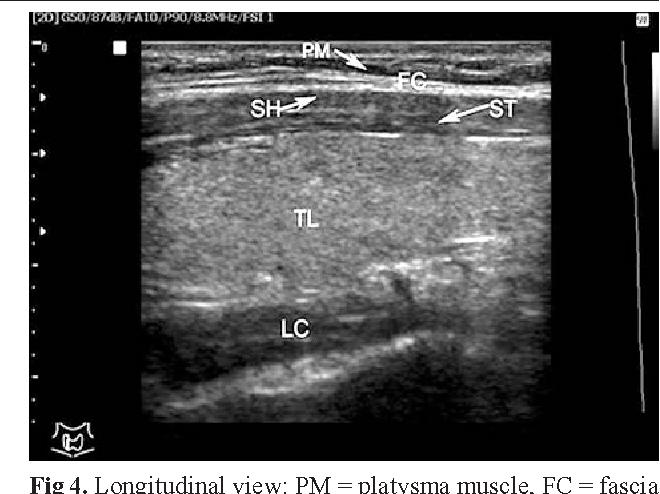longus colli muscle ultrasound wwwimagenesmycom