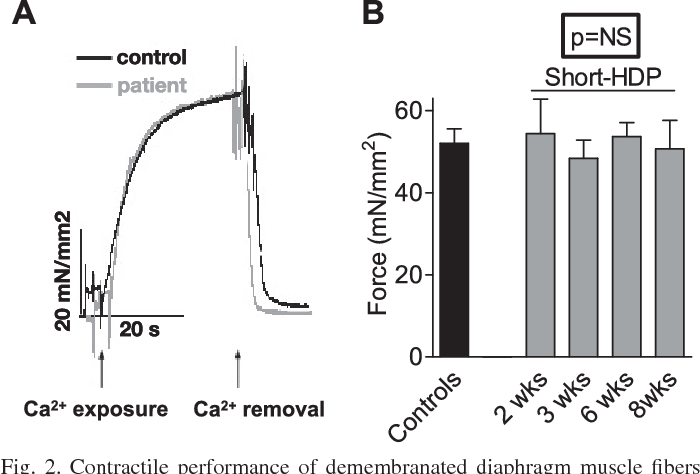 Diaphragm muscle fiber function and structure in humans with ...