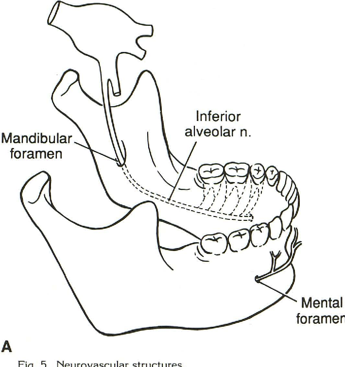 Anatomy of the jaw revisited with a dental CT software program ...