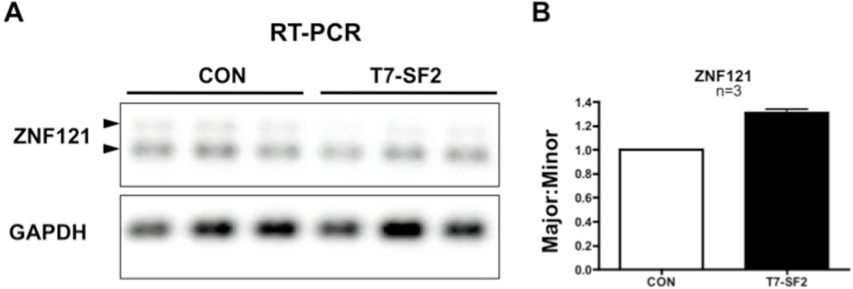 PDF] The Role of SF2 in Prostate Cancer Progression