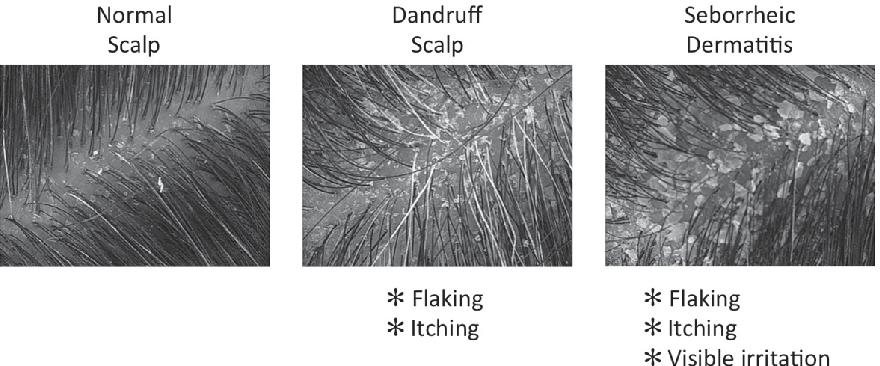 Figure 1 from Dandruff and Seborrheic Dermatitis : A Head Scratcher