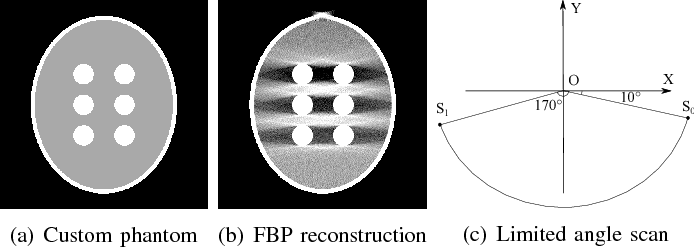 Figure 1 for Scale-Space Anisotropic Total Variation for Limited Angle Tomography