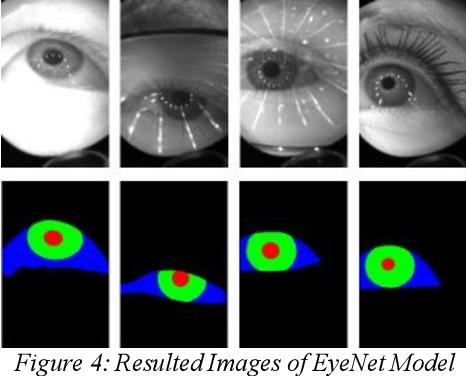 Figure 3 for Eyenet: Attention based Convolutional Encoder-Decoder Network for Eye Region Segmentation