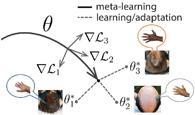 Figure 1 for Model-Agnostic Meta-Learning for EEG Motor Imagery Decoding in Brain-Computer-Interfacing