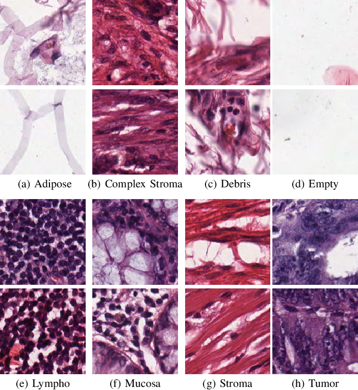 Figure 2 for Double Transfer Learning for Breast Cancer Histopathologic Image Classification