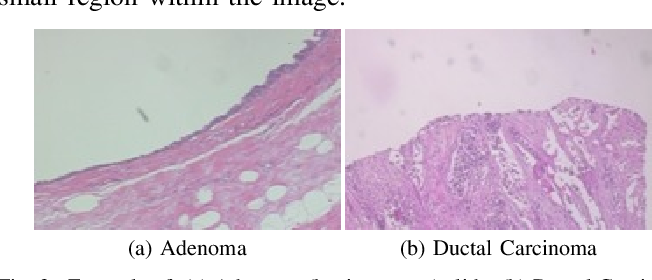 Figure 3 for Double Transfer Learning for Breast Cancer Histopathologic Image Classification