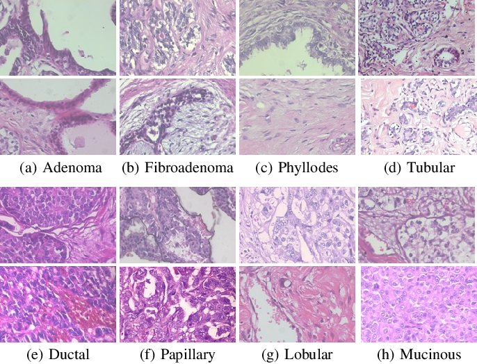 Figure 4 for Double Transfer Learning for Breast Cancer Histopathologic Image Classification